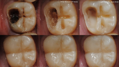 Photo of Reverse Cavities And Heal Tooth Decay With These 4 EASY Steps!