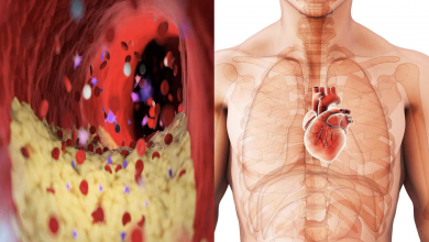 Photo of Cardiologists Explain 5 Foods That Are Bad For Heart Health