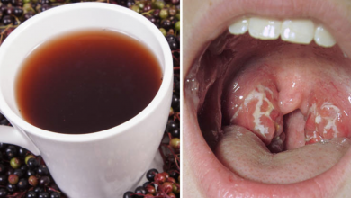 Photo of 10 Natural Remedies For Strep Throat Treatment!